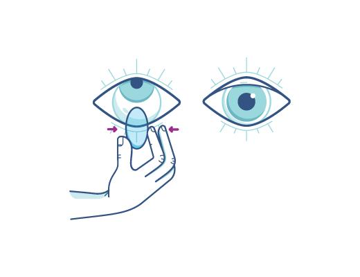 Drücken Sie die Kontaktlinse vorsichtig zusammen, um sie herauszunehmen.