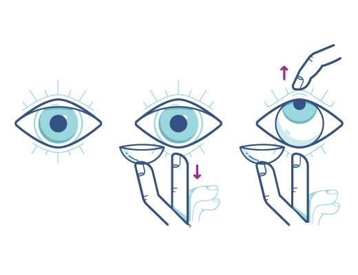 Mit der folgenden Technik können Sie Ihre Augen beim Einsetzen der Kontaktlinsen geöffnet halten.
