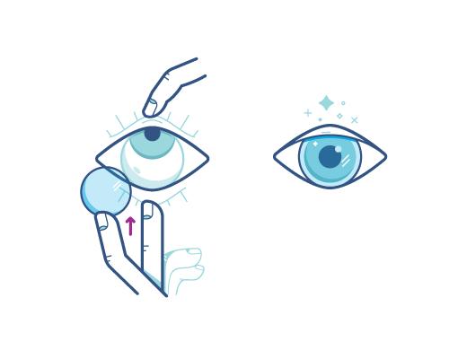 Verwenden Sie diese Technik, um Ihre Kontaktlinsen einzusetzen.