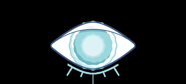 Illustration eines trüben Auges