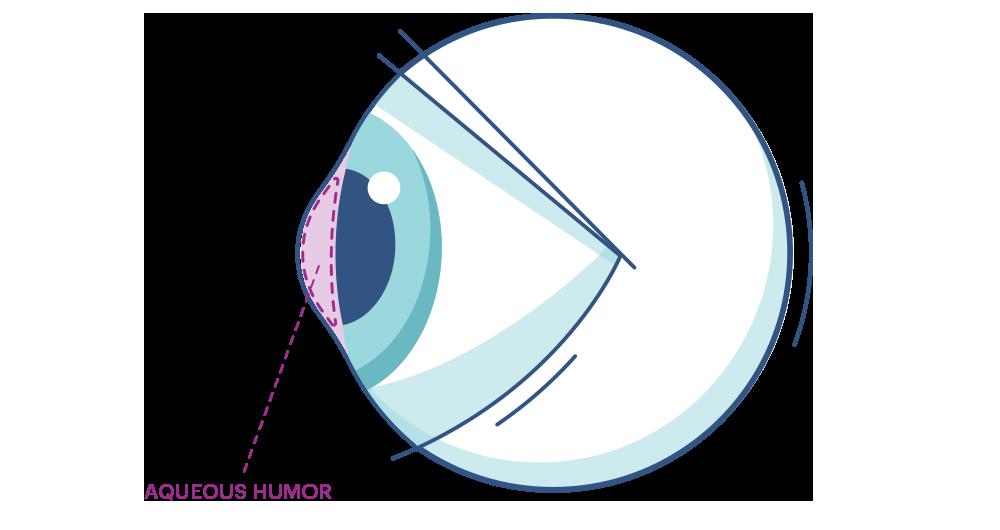 Illustration eines Auges mit Makierung der Augenkammer