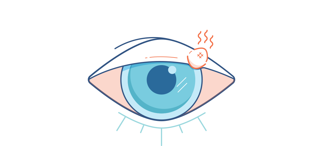 Illustration eines Gerstenkorns am Augenlid.